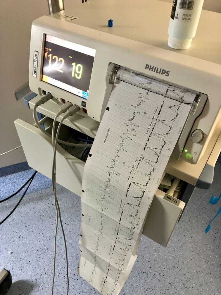 monitores de parto