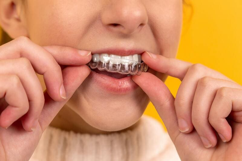 invisalign ortodoncia estetica
